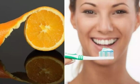 Useful Ways For Whitening Your Teeth Naturally