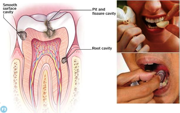Toothache Relief