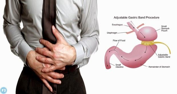 Gastric problem