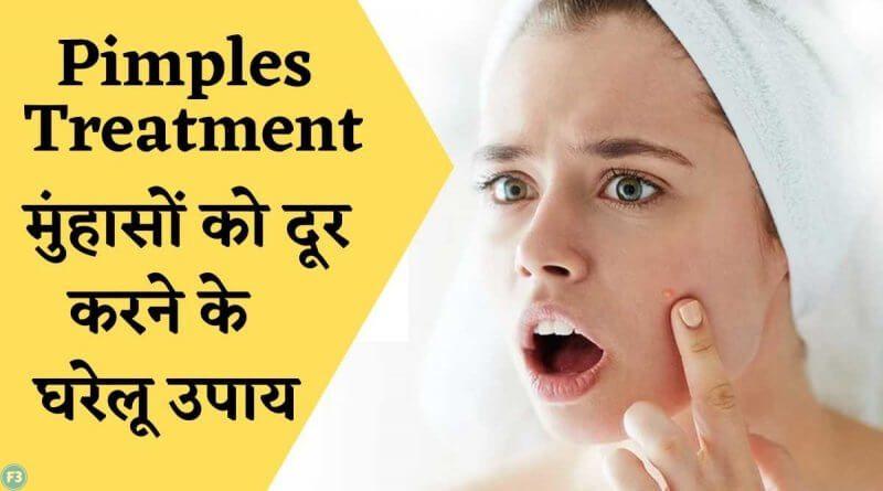 Pimples treatment मुंहासों को दूर करने के आयुर्वेदिक घरेलू उपचार