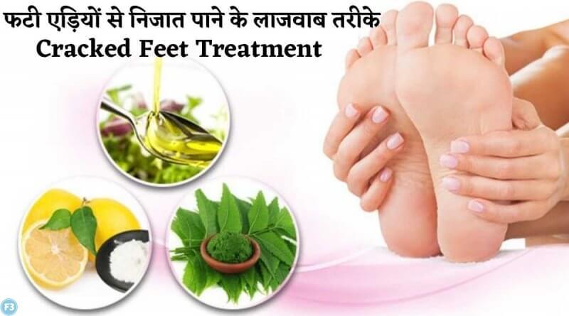 Cracked Feet Treatment