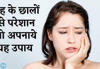 Muh ke chhale मुंह के छालों से छुटकारा पाने के आयुर्वेदिक घरेलू उपाय